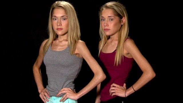Identical Twins Starving to Death: Who's to Blame?