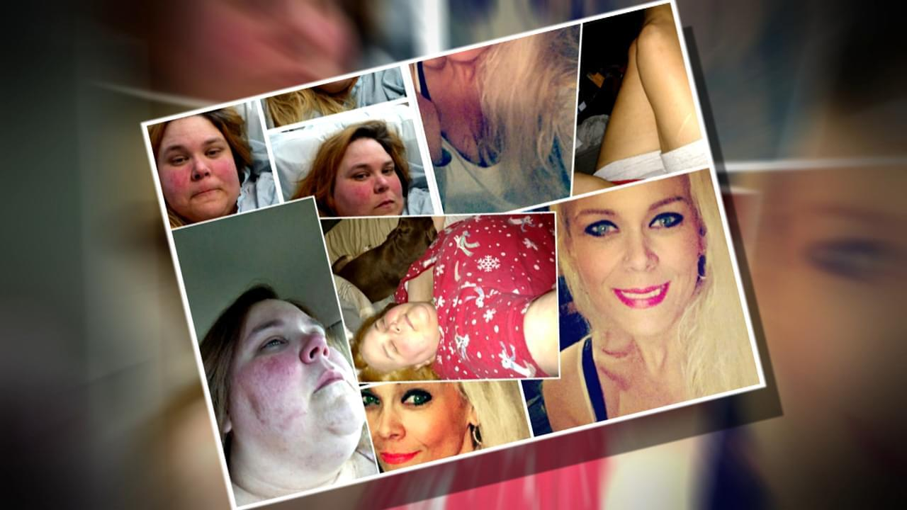 Woman Who Shed 300 Lbs. Describes Life Before Weight Loss