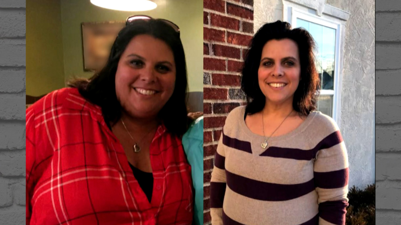 'I Had No Idea How It Would Affect Our Sex Life,' Says Woman Who Lost Over 100 Lbs