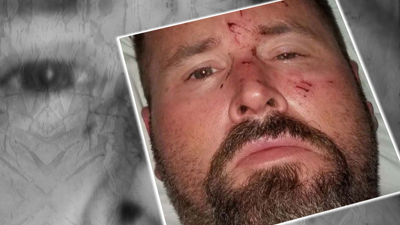 Man Claims Wife Hit Him Multiple Times, Tried To Run Over Him