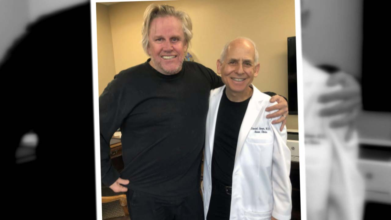 Brain Specialist On Gary Busey's Traumatic Brain Injury: 'It's Almost Miraculous He's Doing As Well As He's Doing'