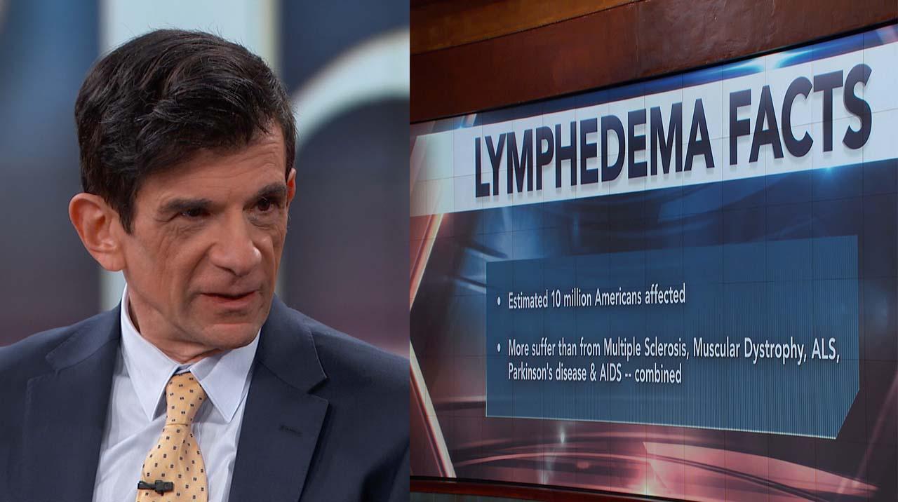 Warning Signs Of Lymphedema